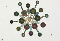"""Diatoms"" Photo credit: W.M. Grant"